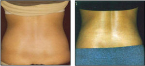 Prolean Injection Lipolysis - Prolean Wellness Arizona